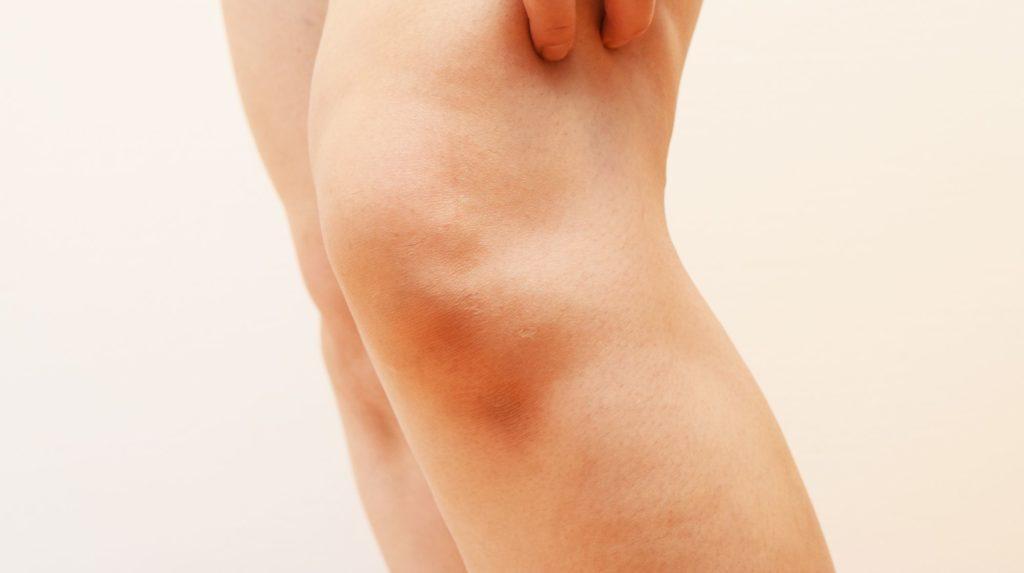 L'arthrose du genou gauche : qu'est-ce que cela signifie ?