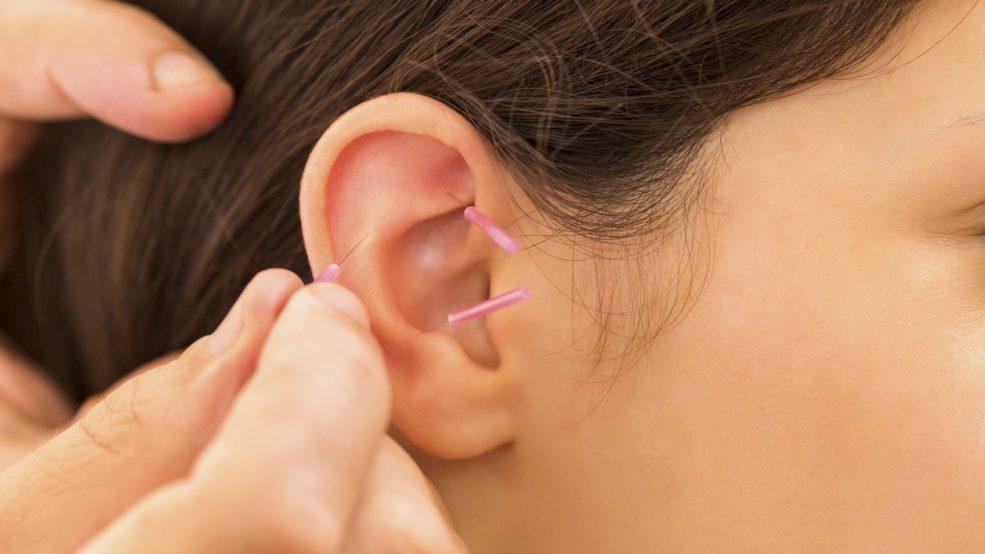 L'acupuncture et l'auriculothérapie contre les bouffées de chaleur
